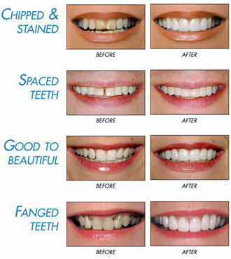 The Dentist Milpark Cosmetic Dentistry Including Teeth